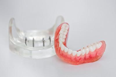 dentures-coffs